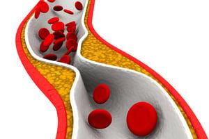 避免動脈硬化 上身做好飲食控制 保護血管健康
