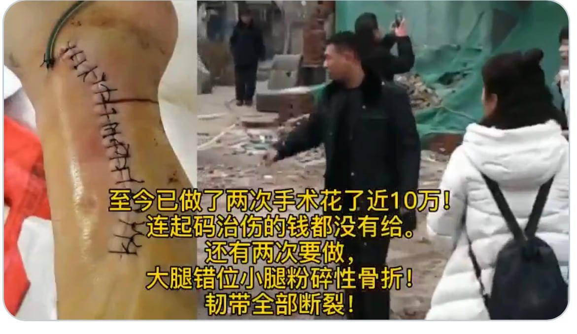 王玉冉丈夫被打傷,前後做了兩次手術,花費近十萬。(受訪者提供)