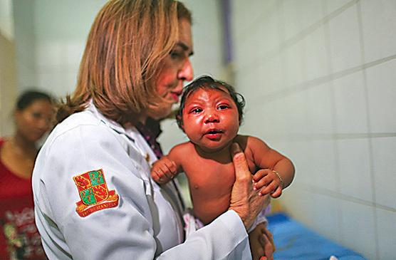 寨卡病毒可以導致新生兒罹患小頭畸形症,同時也有研究指出病毒或與一種罕見神經失調病有關。(Getty Images)
