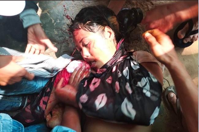 一名抗議女性被軍方打中頭部而亡。(受訪者提供)