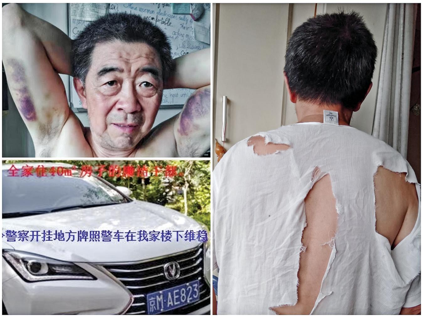 北京科技大學退休教授陳兆志曾經在維權過程中被警察打傷。(大紀元)