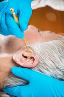耳穴貼壓療法 有效控制高血壓、 改善失眠
