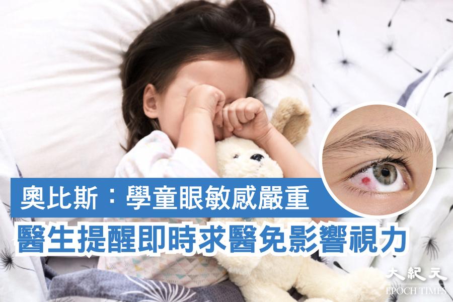 奧比斯:學童眼敏感嚴重 醫生提醒即時求醫免影響視力
