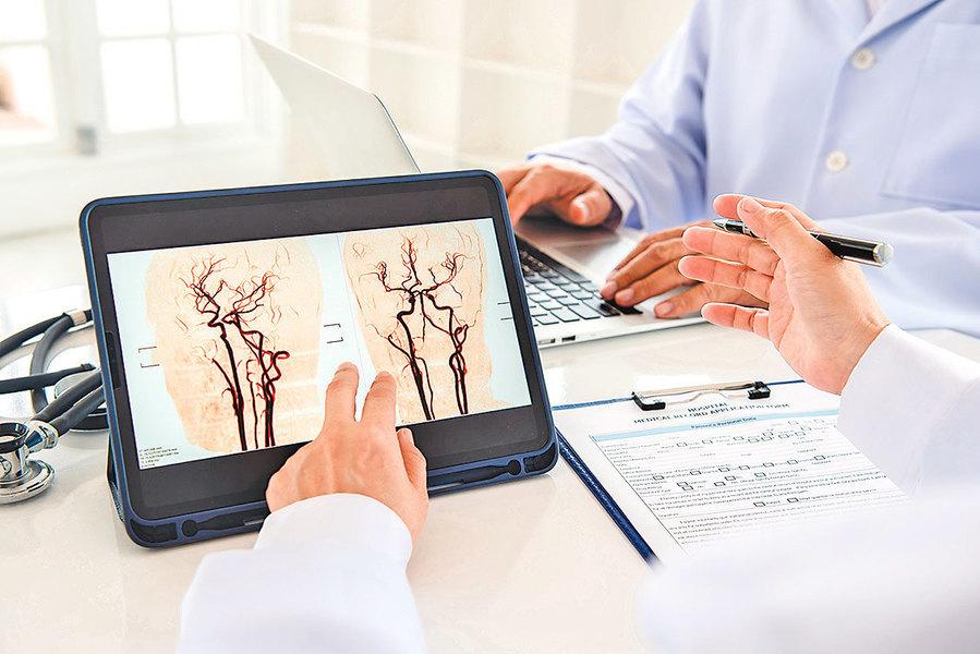 心臟科醫生也可勝任腦血栓移除手術