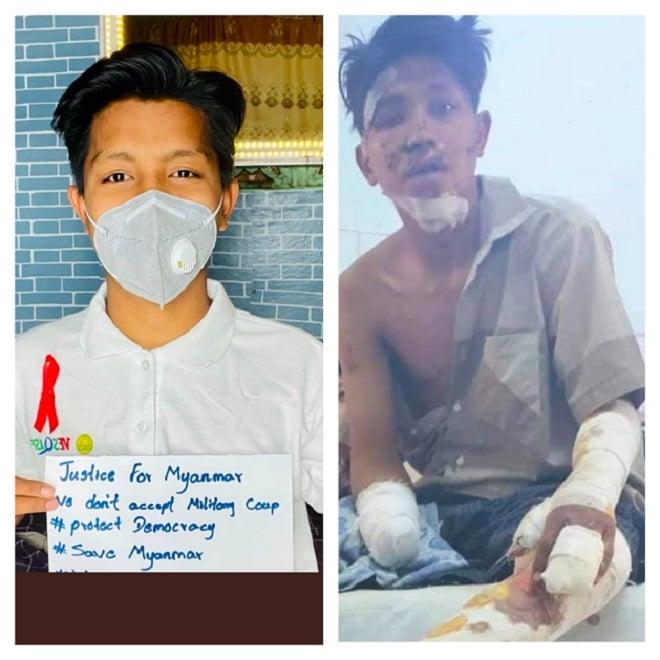 被軍警抓走三個半小時,右手被砍斷,身上六處中彈,下巴被打火機燒糊。(受訪者提供)