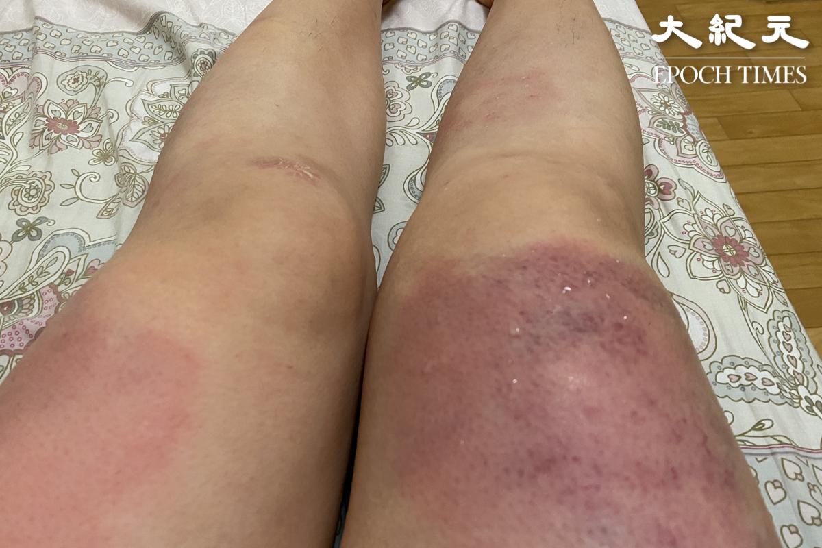 梁珍被襲擊之後腿部多處明顯瘀青,醫生說傷勢嚴重,幸好沒有傷及筋骨。(梁珍/大紀元)