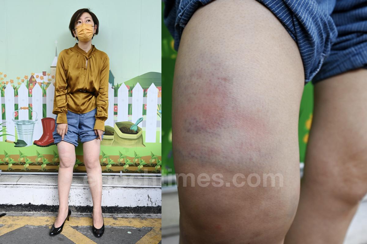 梁珍被襲擊之後腿部傷勢。(宋碧龍/大紀元)