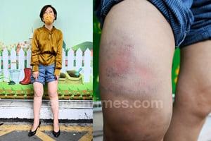 【突發】大紀元記者梁珍住所外被暴力襲擊送院治理【影片】