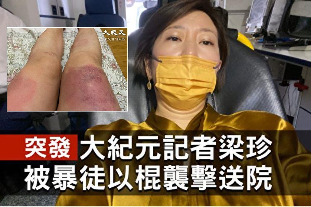 梁珍被襲擊之後腿部多處明顯瘀青,醫生說傷勢嚴重,幸好沒有傷及筋骨。(大紀元)