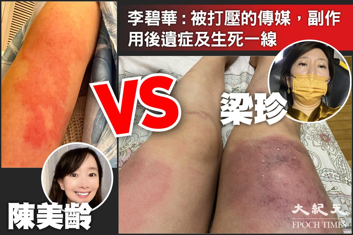 5月11日,香港大紀元記者梁珍在住家樓下遭歹徒暴力毆打,腿部多處受傷。香港著名作家李碧華13日發表專欄文章,直言「這才是被打壓的傳媒」,並形容「副作用後遺症生死一線」。(大紀元製圖)