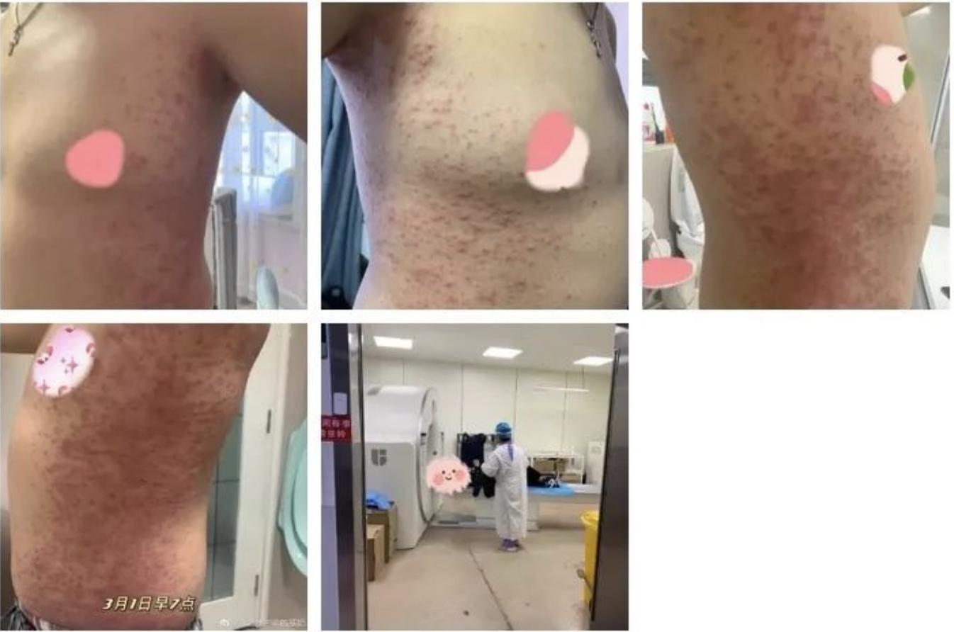 有北京女士在網上公開她丈夫打疫苗出現嚴重過敏,當她向社區和接種的醫院反應時,對方讓她先把病看好再說,也不給任何登記。(網頁截圖)