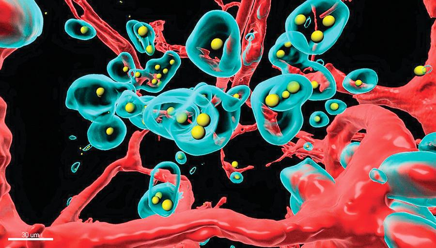 利用木馬送入抗體基因 有望治療癌症和冠狀病毒