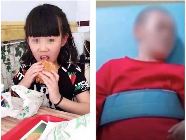山西懷仁12歲女童被繼母虐打至植物人。(視頻截圖)