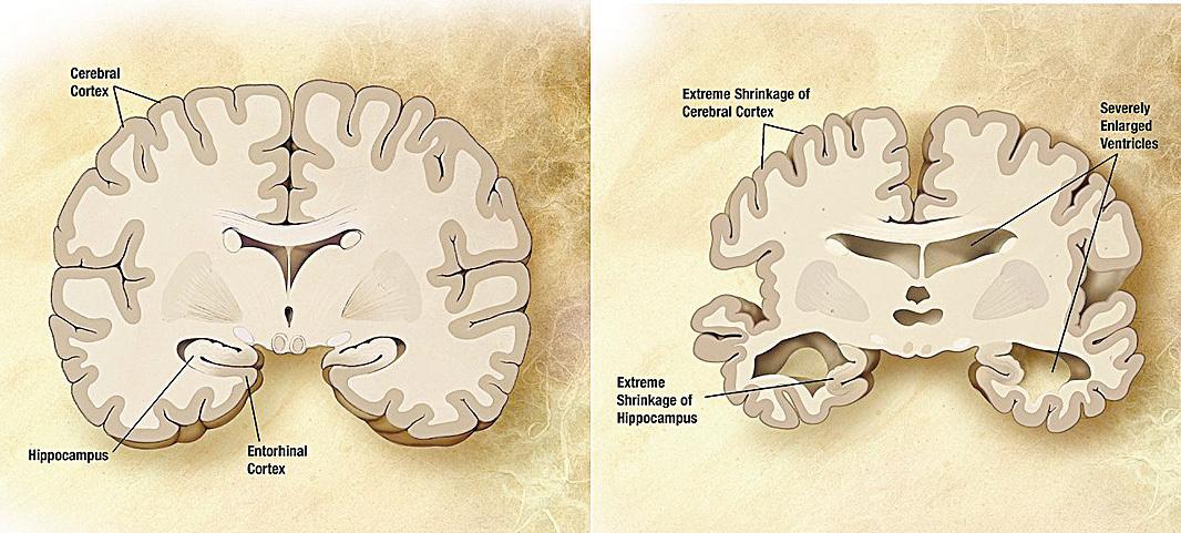 正常老人的大腦(左)與阿爾茲海默氏症病人的大腦(右)。(維基百科)