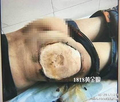 9月9日,浙江金華一名樓姓男子,走在街上突然放在後褲兜的小米4C手機突然發熱自燃。(《1818黃金眼》視像擷圖)