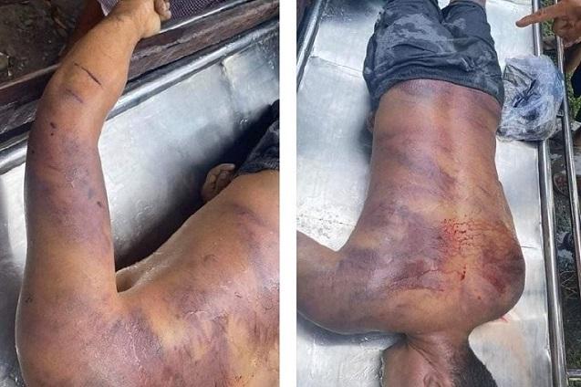 一名抗議者被逮捕後在警察局被酷刑9小時後身亡(受訪者提供)