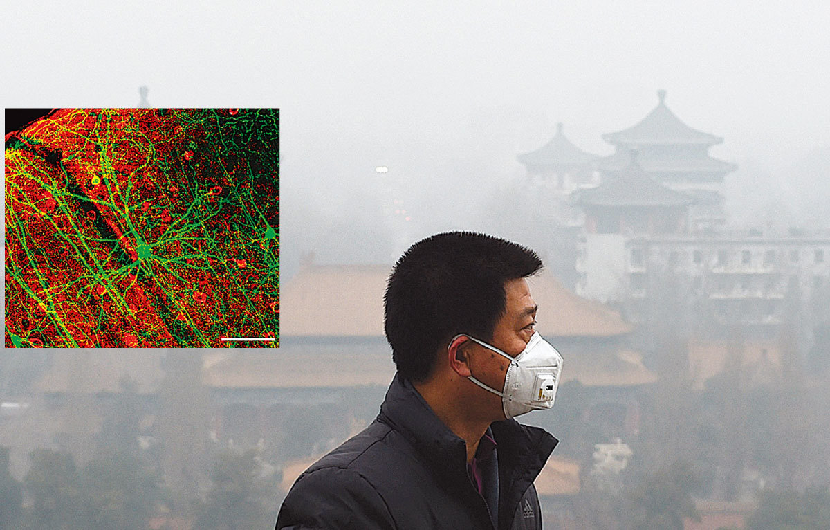 上圖:全球空氣污染嚴重,中國的情況尤其糟糕。(Getty Images)小圖:人腦細胞之間發現空氣污染顆粒。(維基百科)