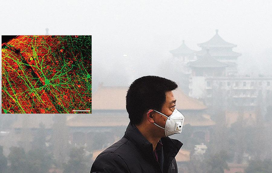 空污顆粒入侵人腦