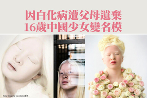 因白化病遭父母遺棄 16歲中國少女變名模【影片】