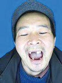 湖南教師呂松明在監獄遭毆打和電擊,牙齒被打傷後逐漸脫落,離開監獄時牙齒只剩下6顆。(明慧網)