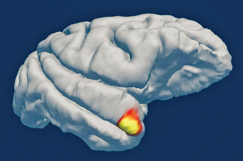 新發現的神經元位於大腦的顳葉區,如圖中紅黃顏色所示( 箭頭所指),兼具視覺感應和記憶判斷的功能。(Sofia Landi, Laboratory of Neural Systems, Rockefeller University/University of Washington)