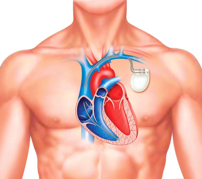 新型心臟起搏器 可在體內自行溶解