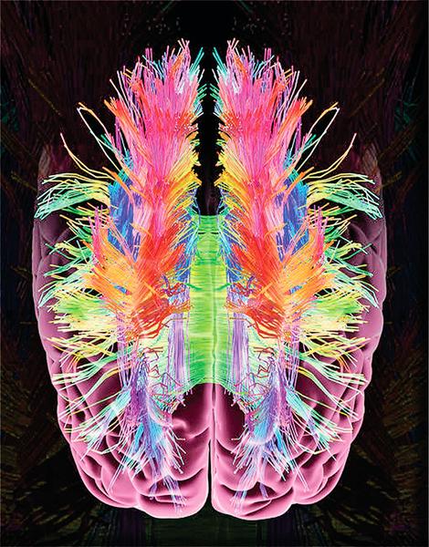 大腦神經元地圖問世 腦部手術將更精確