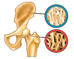 居家防疫期間  你的肌肉、骨骼質量流失了嗎?