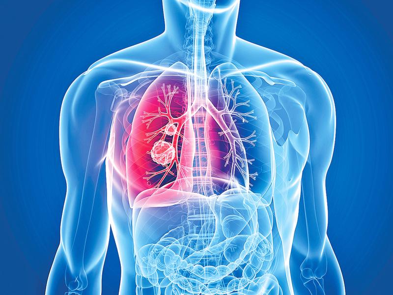 不吸煙者為甚麼得肺癌?