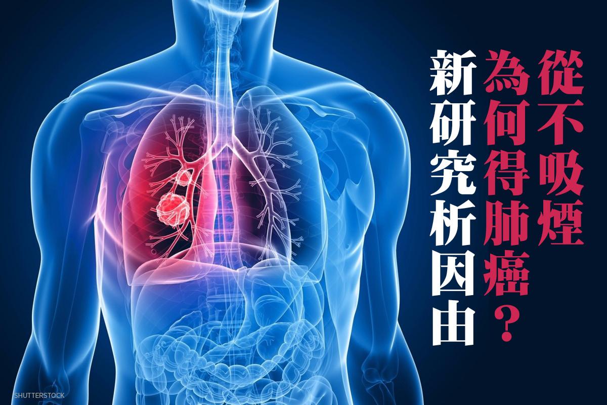 肺癌示意圖。(ShutterStock)