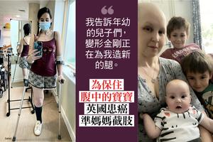 為保住腹中寶寶 英國患癌準媽媽截肢