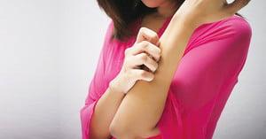 皮膚自然防禦或成為 濕疹新療法