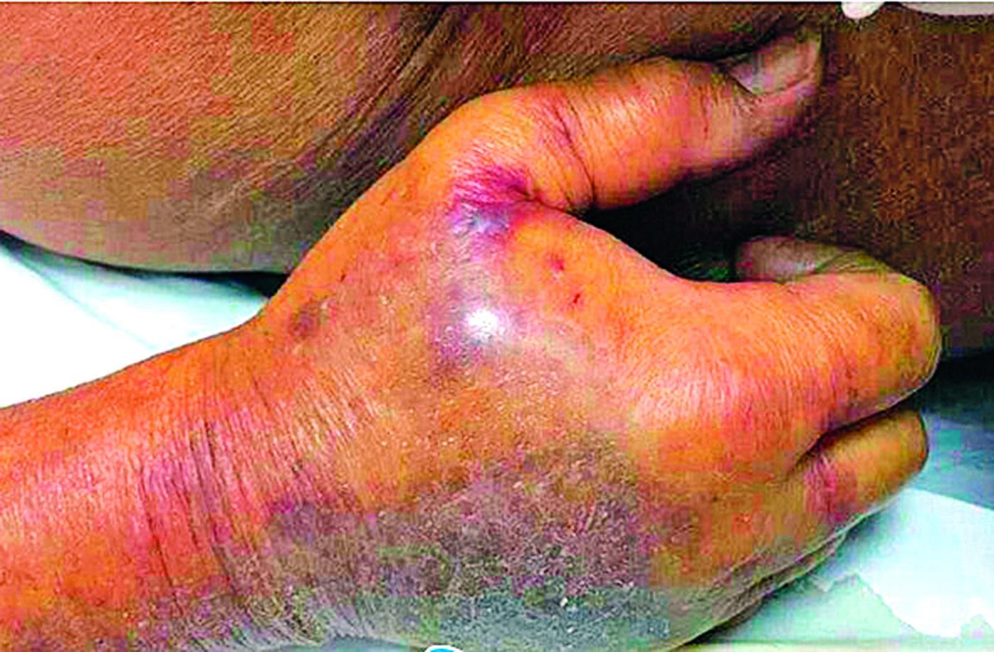 老人右手虎口被蟹鉗鉗傷,手背腫脹發黑。(網絡圖片)