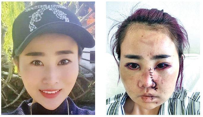 女子遊麗江 被群毆毀容