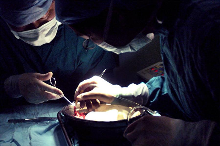中共器官移植專家論文被禁 黃潔夫回應被刪