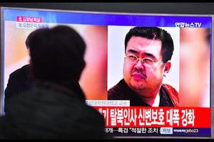 金正恩長兄疑遭北韓毒殺 曾說被噴不明液體