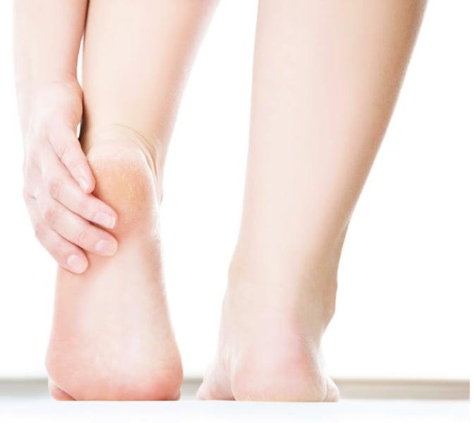 腳臭、腳乾裂試試這幾個天然療法