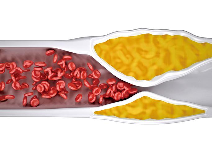 科學證實海帶改善粥狀動脈硬化