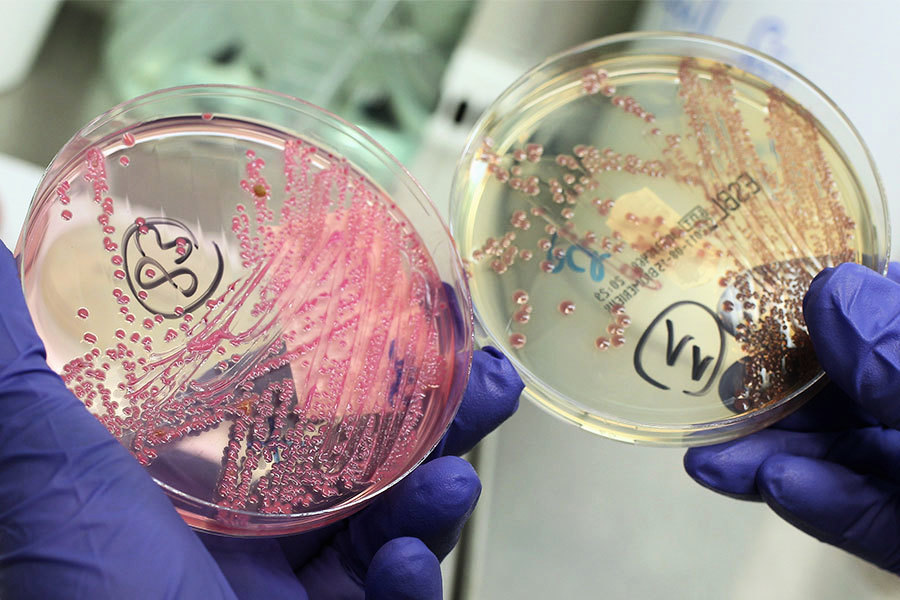 世衛公佈最致命十二種細菌 警告即將無藥可醫