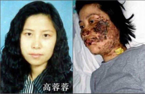 高蓉蓉被關押期間面部被電擊毀容的照片曝光後一度在全世界引起震動,中共當局極度恐慌。(資料圖片)