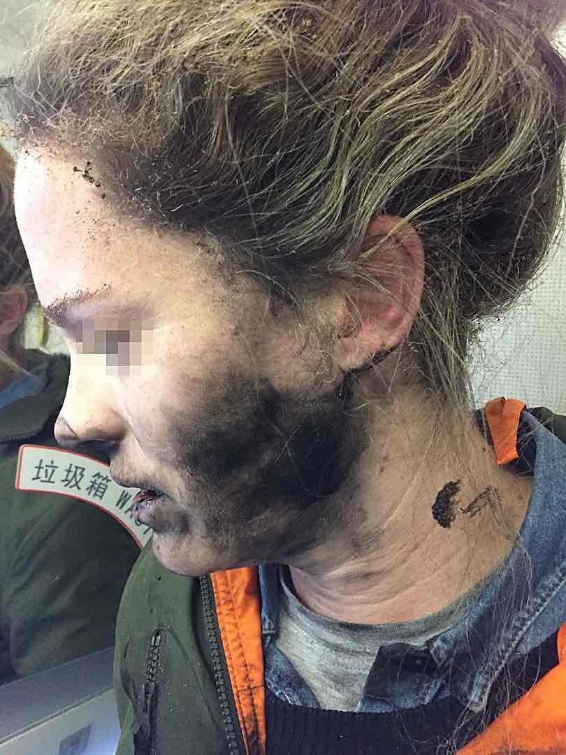 澳洲女子被耳機電池炸傷臉部。(Australian Transport Safety Bureau/AAP)