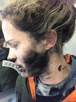 耳機電池在飛機上爆炸 澳洲女子臉部被灼傷