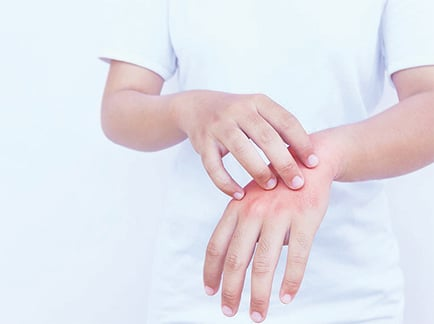 小傷口別輕忽 壞死性筋膜炎恐致命