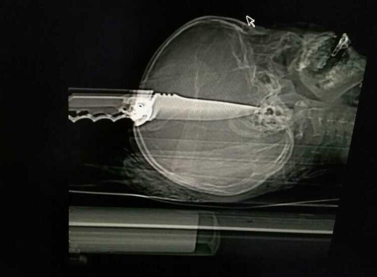 X光片顯示,鋼刀貫穿該名學生頭部,刀尖直達喉嚨處。(志願者提供/自由亞洲電台)