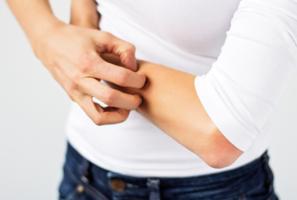 4種皮膚異常狀況 顯示健康出問題