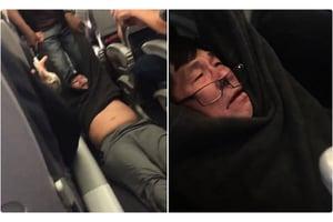 聯合航空拖人案事主掉兩門牙 鼻梁斷裂