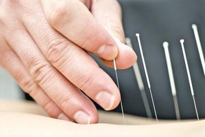 醫學研究見證 針灸改善鼻過敏