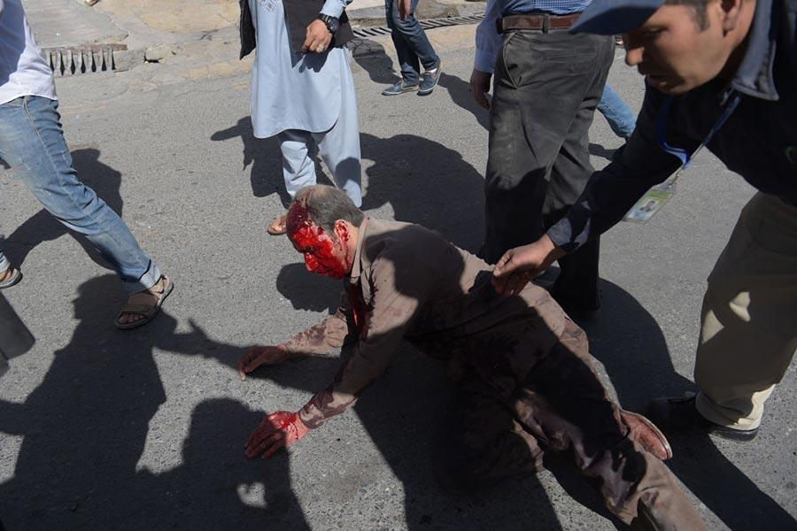5月31日喀布爾發生大爆炸,圖為受傷者。(SHAH MARAI/AFP/Getty Images)