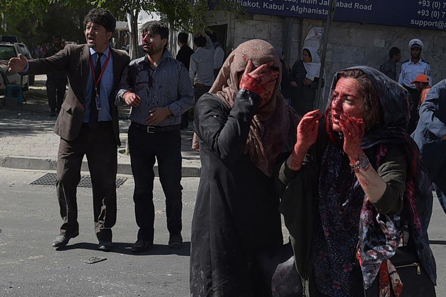 5月31日阿富汗首都喀布爾發生大爆炸事件,圖為受傷者。(SHAH MARAI/AFP/Getty Images)