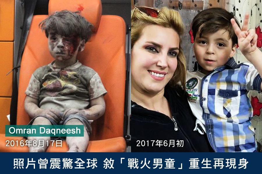 照片曾震驚全球 敘「戰火男童」重生再現身